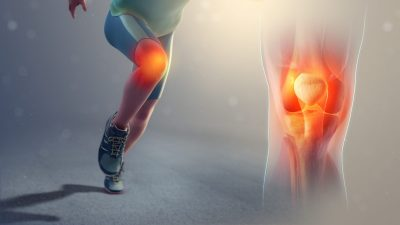 what is runners knee